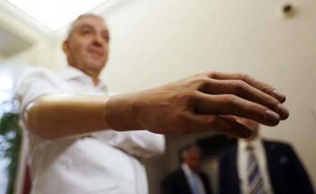 Италия: ученые разработали более точный и дешевый протез руки
