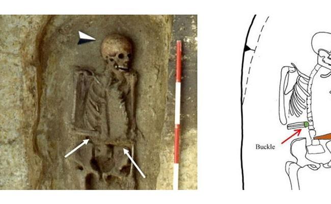 Археологи нашли в Италии средневекового «киборга»